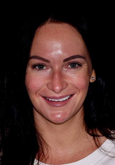 Patient with brilliant smile after teeth whitening