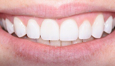 Closeup of brilliant smile after teeth whitening