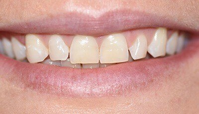 Closeup of yellowed smile before teeth whitening