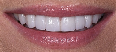 closeup of perfect smile after cosmetic dentistry