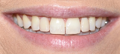 closeup of imperfect smile before cosmetic dentistry