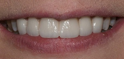 Closeup of perfectly aligned smile after clear braces orthodontics