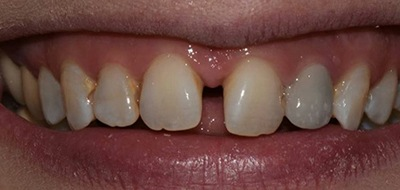 Closeup of smile with large gap between front teeth before clear braces orthodontics