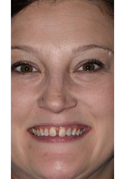 Woman with large gap between front teeth before clear braces orthodontics