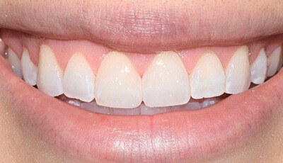Closeup of white teeth and beautiful smile after cosmetic dentistry