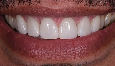 Healthy beautiful and aligned teeth after cosmetic dentistry and clear braces