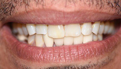 Crooked worn teeth before cosmetic dentistry and clear braces