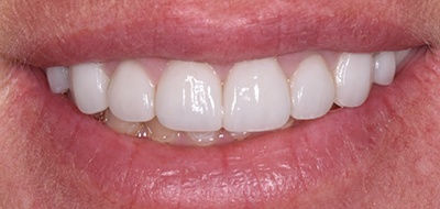 Brilliant white front teeth after teeth whitening