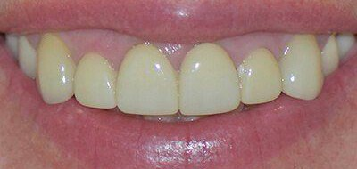 Yellow front teeth before teeth whitening