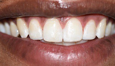 Perfectly aligned smile after cosmetic dentistry