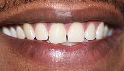 Unevenly spaced teeth before cosmetic dentistry