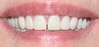 Gorgeous and healthy smile after cosmetic dentistry