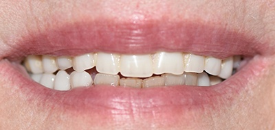 Worn and damaged teeth before cosmetic dentistry