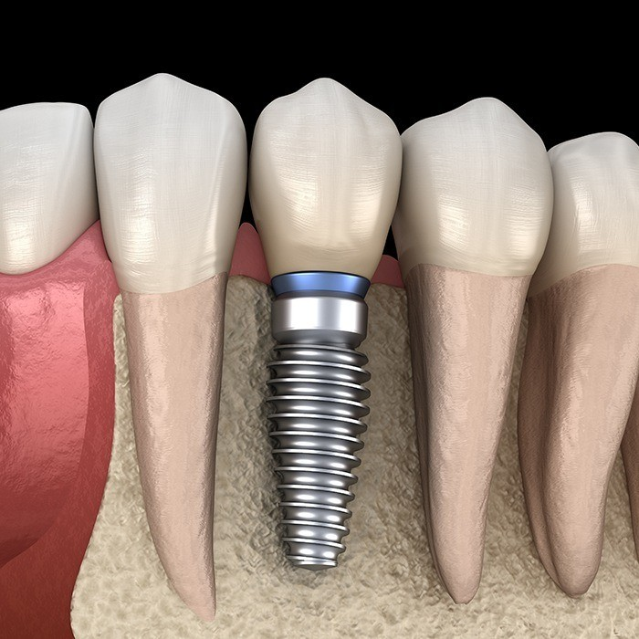 Animated dental implant placement in jawbone