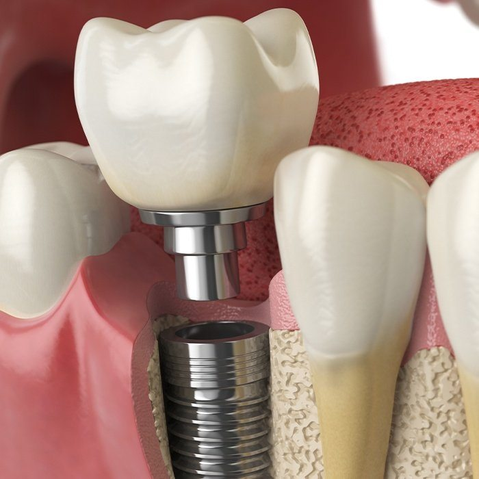 Closeup of dental implant post placed in jawbone