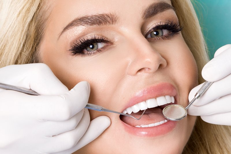 Woman with veneers at dental examination